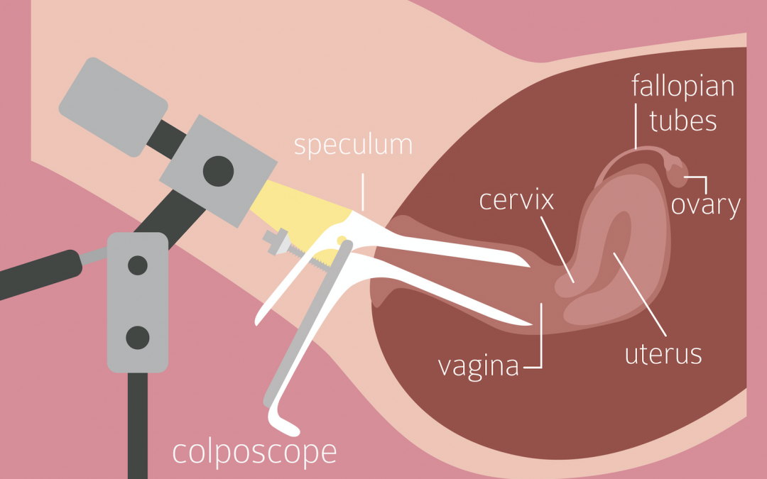 What is a Colposcopy?